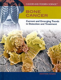 Bone_Cancer:_Current_and_Emerg