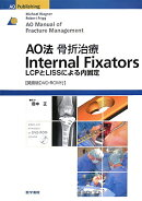 AO法骨折治療internal fixators