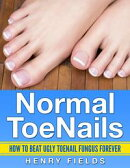 Normal ToeNails