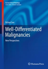 Well-DifferentiatedMalignanciesNewPerspectives