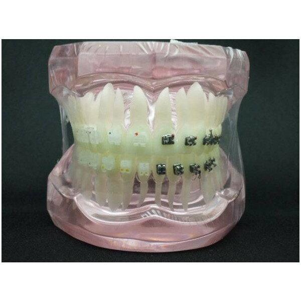 〇歯科模型 上下顎模型 メタル・セラミックブランケット