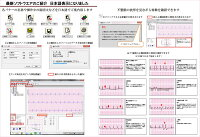 パソコンで管理できるソフトと心電図の例