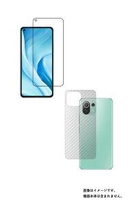 【2枚組(画面+背面)】Xiaomi Mi 11 Lite 5G 用 高硬度 9H クリア タイプ 液晶 保護 フィルム + カーボン調 背面 保護フィルム 強化 ガラスフィルム と 同等の 高硬度9H ★