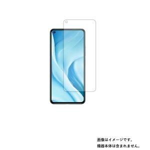 Xiaomi Mi 11 Lite 5G 用【清潔で目に優しいアンチグレア・ブルーライトカットタイプ】液晶保護フィルム ★