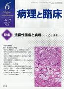 病理と臨床 2019年 06月号 [雑誌]