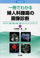 一冊でわかる婦人科腫瘍の画像診断