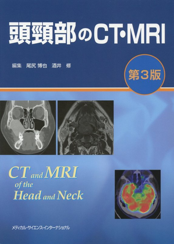 頭頸部のCT・MRI [ 尾尻 博也 ]
