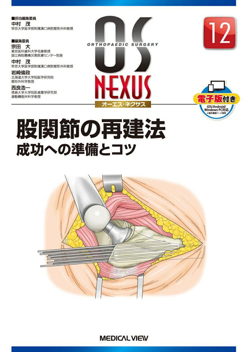 股関節の再建法 成功への準備とコツ (OS NEXUS) [ 中村茂(医師) ]