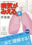 病気がみえる(4)第2版 呼吸器