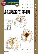 弁膜症の手術 2