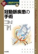 冠動脈疾患の手術(第3巻)