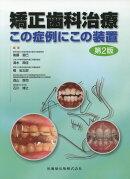 矯正歯科治療第2版