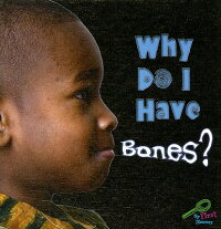 Why_Do_I_Have_Bones?
