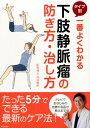 一番よくわかる タイプ別 下肢静脈瘤の防ぎ方・治し方 [ 池谷敏郎 ]