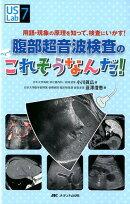 腹部超音波検査の へぇ〜!! これそうなんだ!