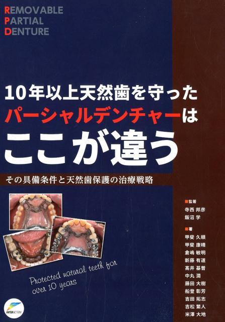 10年以上天然歯を守ったパーシャルデンチャーはここが違う その具備条件と天然歯保護の治療戦略 [ 寺西邦彦 ]