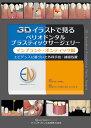 3Dイラストで見るペリオドンタルプラスティックサージェリー インプラント・ポンティック編 エビデンスに基づいた外科…