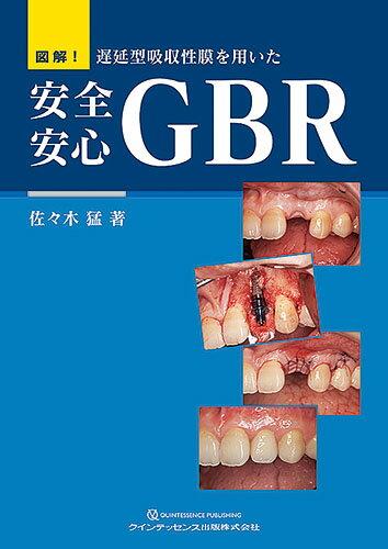 図解! 遅延型吸収性膜を用いた 安全安心GBR [ 佐々木 猛 ]