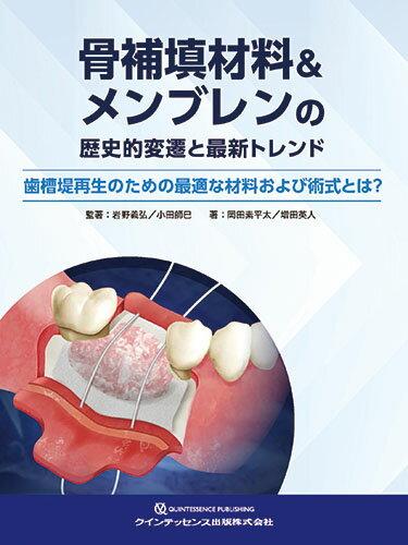 骨補填材料&メンブレンの歴史的変遷と最新トレンド 歯槽堤再生のための最適な材料および術式とは? [ 岩野義弘 ]