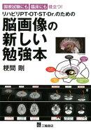 国家試験にも臨床にも役立つ!リハビリPT・OT・ST・Dr.のための脳画像の新し