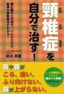 【バーゲン本】頸椎症を自分で治す!