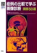 症例の比較で学ぶ画像診断頭部50選