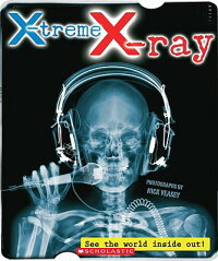 X-Treme_X-Ray:_See_the_World_I