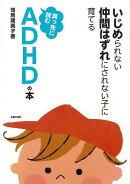 【バーゲン本】真っ先に読むADHDの本