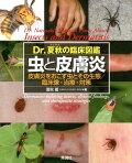 【入荷予約】虫と皮膚炎