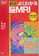 よくわかる脳MRI新版