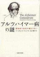 アルツハイマー病の謎