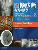 画像診断を学ぼう第2版
