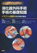 消化器外科手術 手術の基礎知識