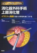 消化器外科手術 上部消化管