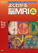 よくわかる脳MRI 改訂第4版