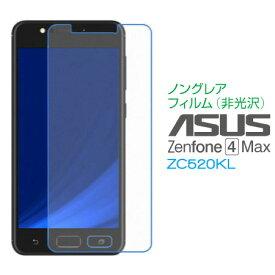 【エントリーでポイント6倍!】18日1:59まで! ASUS ZenFone 4 Max ZC520KL ノングレア(非光沢)フィルム 液晶 画面 保護フィルム SF-ZC520KL-S メール便(定形外郵便)送料無料