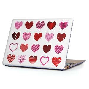 MacBook Air 13inch 2010  2017 専用 デザインハードケース A1466 A1369 Apple マックブック エア ノートパソコン カバー ケース ハードカバー クリア 透明 015515 ハート ピンク かわいい