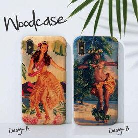 iPhoneXsMAX XR X Xs ケース iPhone8/7/6 ウッドケース iPhone8Plus/iPhone7Plus/6s/6sPlus wood ケース XperiaZ5 woodケース iPhoneSE 木製 ケース フラガール フラダンス フラ 夏 ハワイ ビーチ イラスト 海 かわいい おしゃれ 木目ケース
