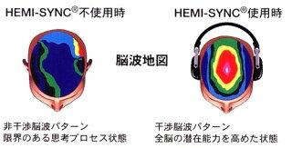 ヘミシンクCDによる脳波地図の変化