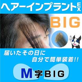 ヘアーインプラントEX M字用BIG(男性用かつら)※強力テープ貼り付け済み