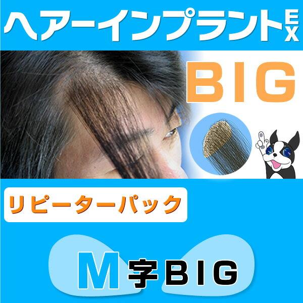 (リピーターパック)ヘアーインプラントEX M字用BIG(部分かつら)※LFSテープ貼り付け済み