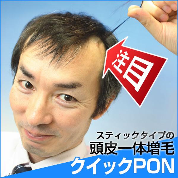 【全額返金保証】クイックPON(クイックポン) 24スティック入り(+3本増量中)増毛 植毛 かつら 抜け毛 メンズ レディース ウィッグ