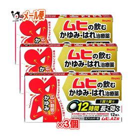 【第2類医薬品】ムヒAZ錠 12錠 × 3個セット【池田模範堂】