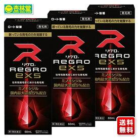 【第1類医薬品】 ロート製薬 リグロEX5 60mL ×3個 | 男性用発毛剤