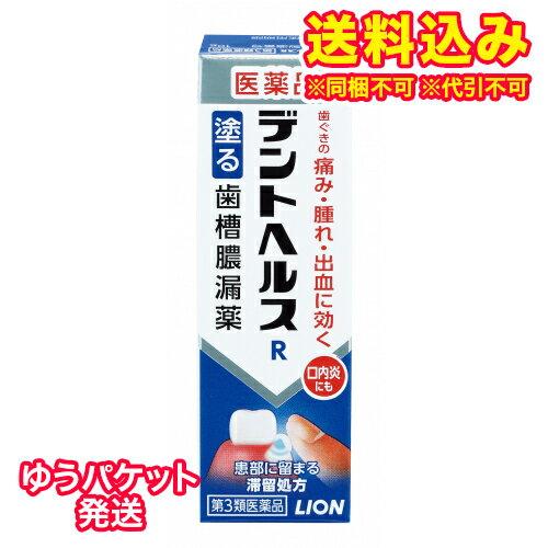 【DM便送料込み】【第3類医薬品】デントヘルスR 10g