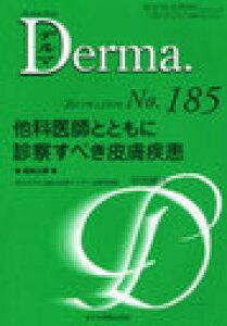デルマ No.185(2011年11月号) (単行本・ムック) / 飯島正文/編集主幹 塩原哲夫/編集主幹