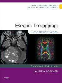 BrainImaging:CaseReviewSeriesE-Book