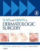 Flaps and Grafts in Dermatologic Surgery E-Book