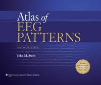 Atlas of EEG Patterns【電子書籍】[ John M. Stern ]