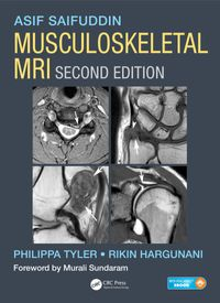 MusculoskeletalMRI,SecondEdition